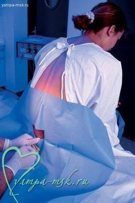 Эпидуральная анестезия, эпидуралка, роды с эпидуралкой, виды анестезии в родах,плюсы эпидуральной анестезии, как делают эпидуральную анестезию